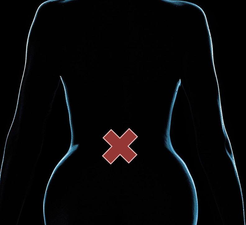 椎間板ヘルニア治療剤「ヘルニコア椎間板注用1.25単位」の薬効と臨床データ