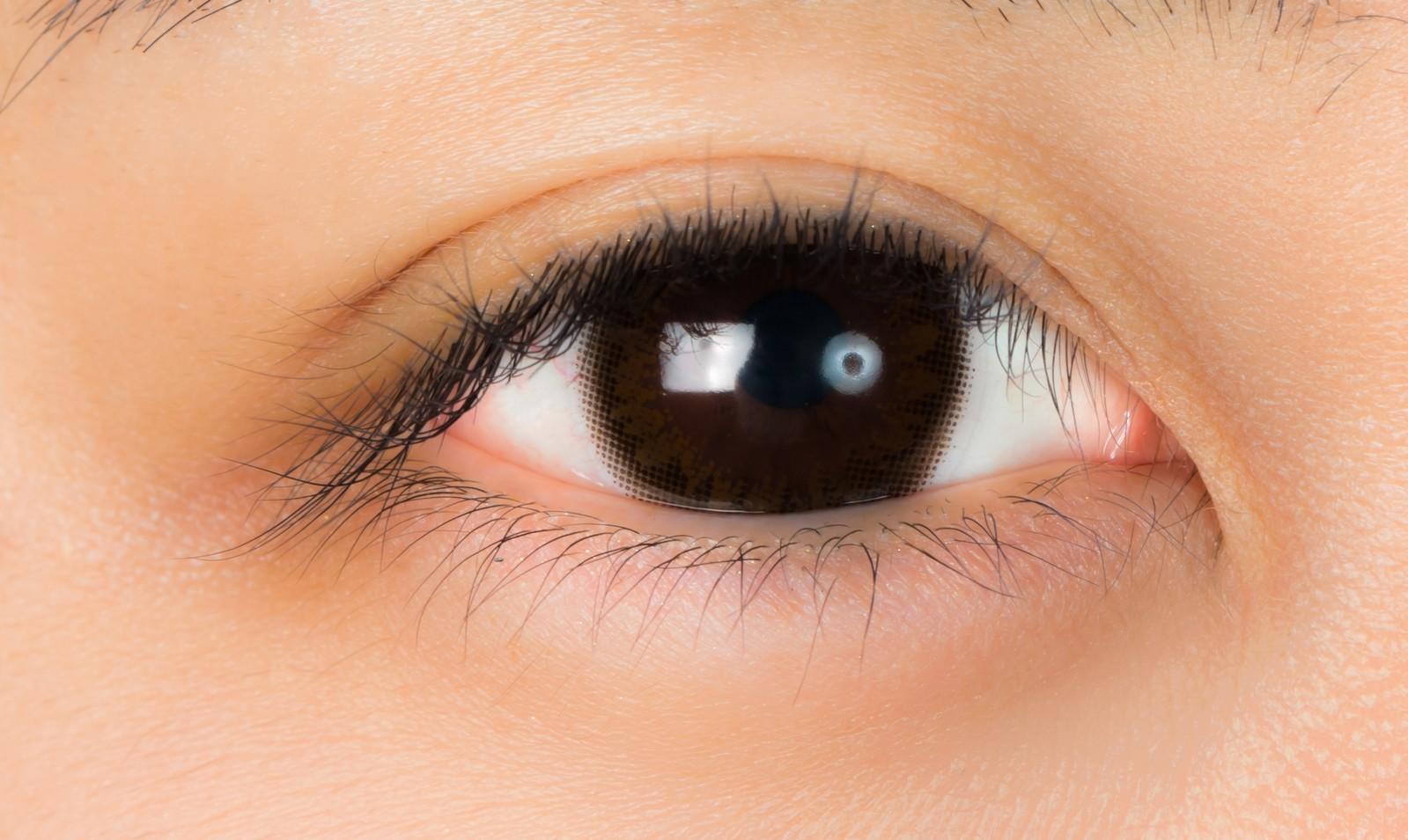 コンタクトレンズをした状態でムコスタ点眼液をした時の効果について