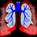 asthma-RELVAR-ELLIPTA