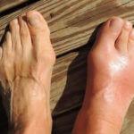 gout-allopurinol-effect-pain